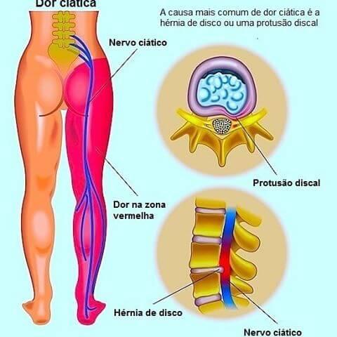 Causa da dor no nervo ciatico