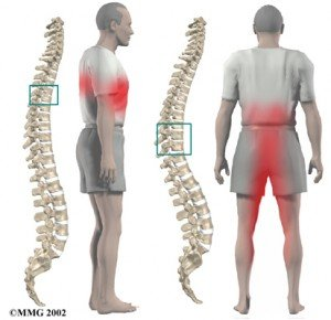 tratamento para hernia de disco