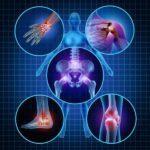 Parecidas mas não iguais, entenda a diferença entre Artrite e Artrose