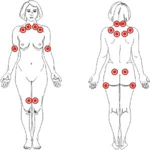 Pontos gatilho da fibromialgia