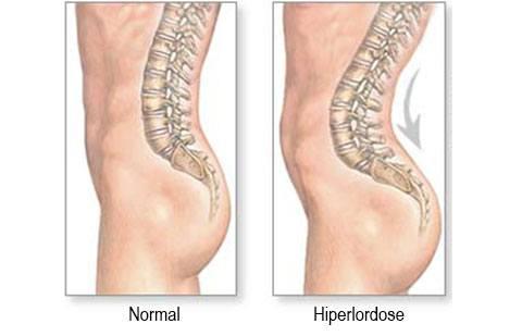 causas sintomas tratamentos lordose hiperlordose