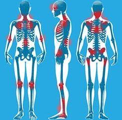 O que é a Fibromialgia, suas causas, sintomas e tratamentos