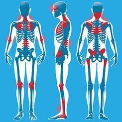 pontos-sensiveis-fibromialgia.jpg
