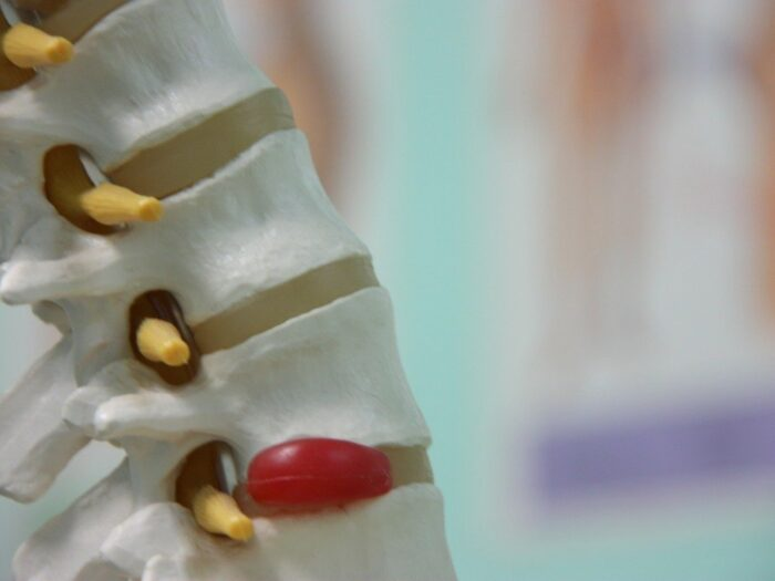 causas, sintomas e tratamento hernia de disco