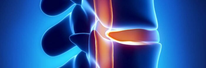 hernia de disco sintomas causas tratamentos