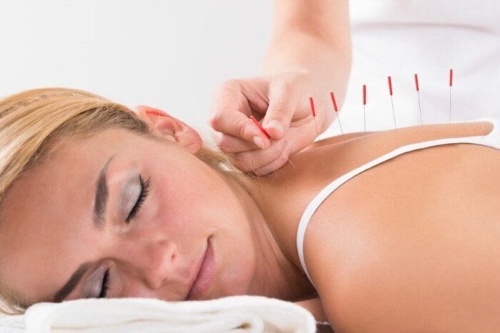 acupuntura para dor cronica nas costas