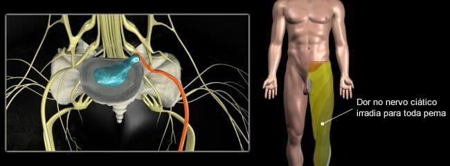 Para médico, dor no nervo ciático pode ser sintoma de hérnia de disco
