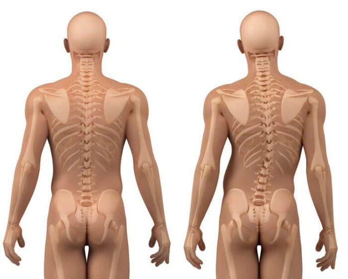 tratamento escoliose clinica vertebrata
