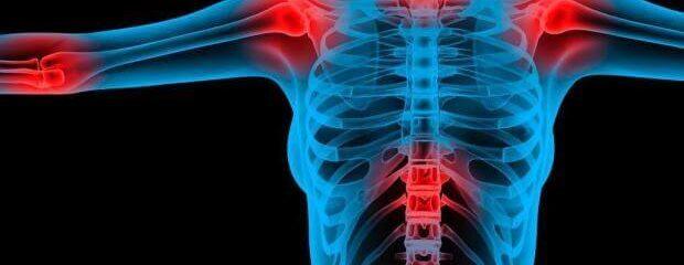 O que você deve saber sobre fibromialgia