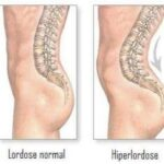 Como é feito o diagnóstico e o tratamento da hiperlordose na coluna lombar