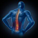 Como criar uma estratégia de tratamento para dor nas costas