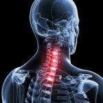 Conheça as causas e o tratamento para dor no pescoço