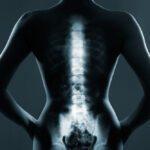 Tire suas dúvidas sobre Nucleoplastia