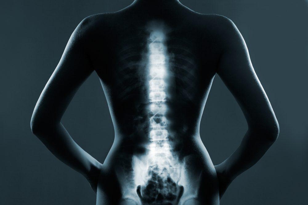 Clínica Vertebrata - Nucleoplastia