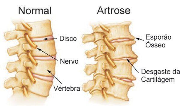 Causas e sintomas da artrose na coluna cervical e lombar