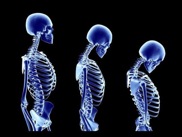 clínica vertebrata - artrose na coluna