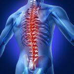 A relação entre a espondilite anquilosante e as dores na coluna