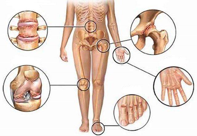 Osteoartrite - Dores nas articulaçoes