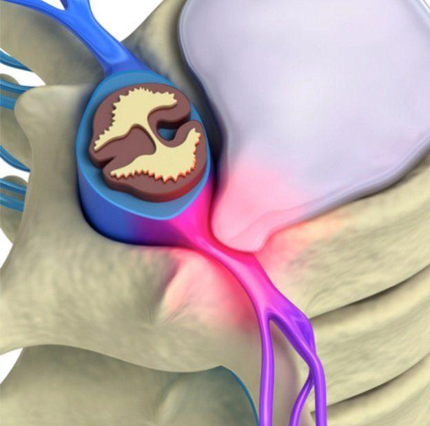 sintomas hernia de disco tratamento hernia de disco
