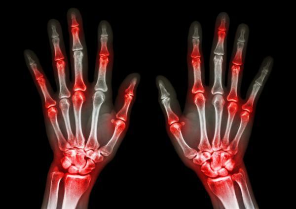 Sintomas e causas artrite reumatoide na coluna
