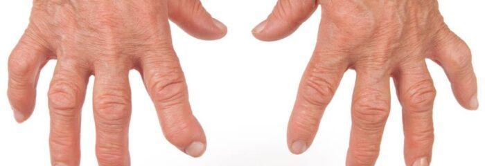 Quais as diferenças e semelhanças entre a Osteoartrite e outras doenças?