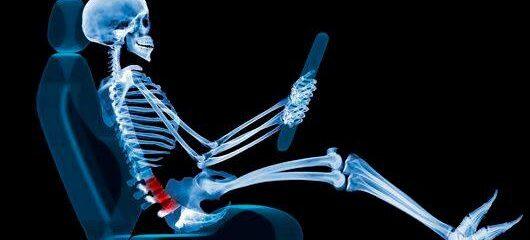 Como evitar dores nas costas e problemas ainda piores ao dirigir