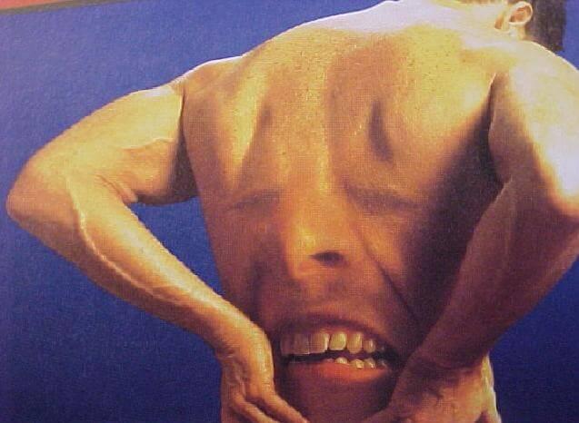 Dor na coluna lombar pode ser lombalgia