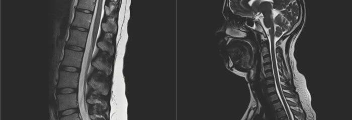 Procedimentos e exames clínicos ajudam a diagnosticar problemas de coluna