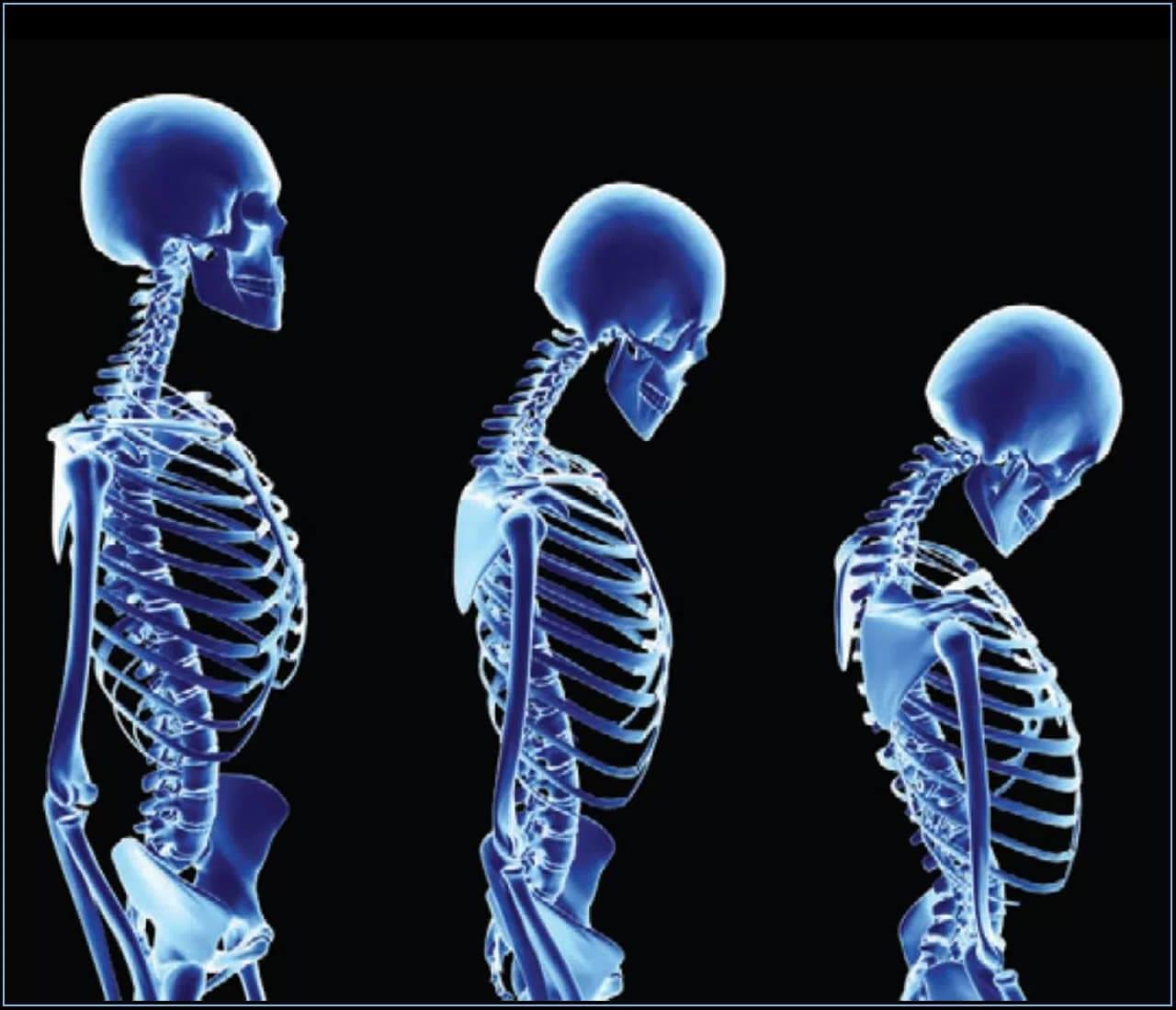 Populares artrite na coluna vertebral - Vertebrata RY83