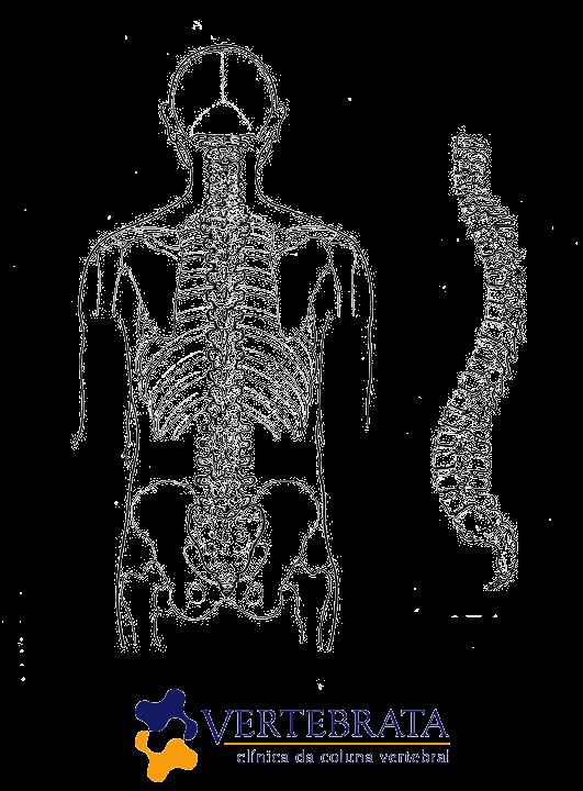 cirurgia da coluna