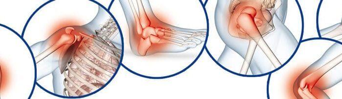 Artrose tem cura? Como tratar esse mal que atinge as articulações?