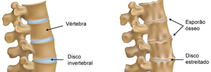 Tratamento não cirúrgico da Osteoartrite inclui repouso, perda de peso e medicamentos