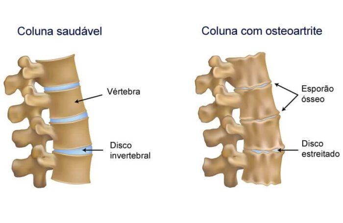 tratamento osteoartrite