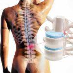 Cirurgias e outros tratamentos para hérnia de disco buscam aliviar dores na coluna
