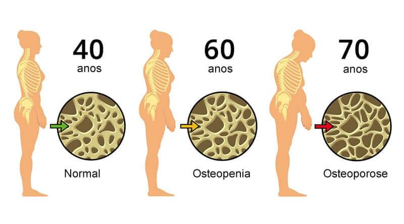 vertebrata - tratamento osteoporose