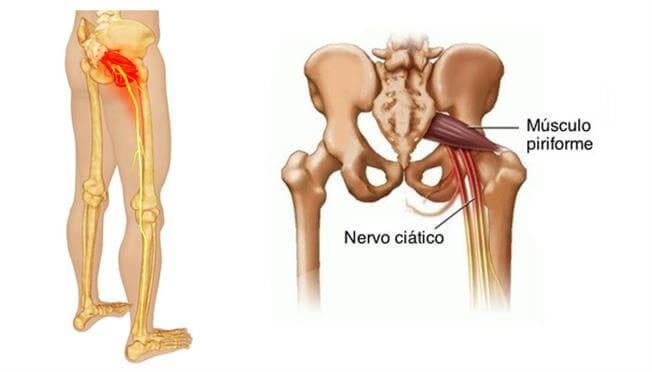 dor no nervo ciatico - clinica vertebrata