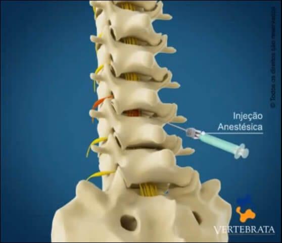 vertebrata - injeçao anestesica na coluna