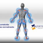 Artrite reumatoide: quais os tratamentos e como amenizar os sintomas