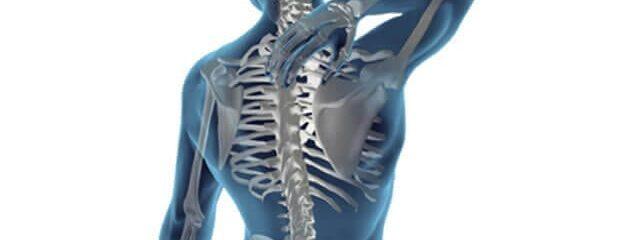 Dor irradiada da coluna: problemas nas costas podem causar sintomas em outras regiões