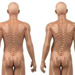 Escoliose: tratamento e cirurgia aliviam deformidade da coluna vertebral