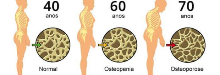 O que é e como tratar a osteopenia, condição que pode levar à osteoporose