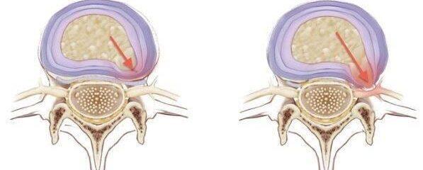 Protrusão discal pode evoluir para hérnia de disco; confira causas, sintomas e tratamentos