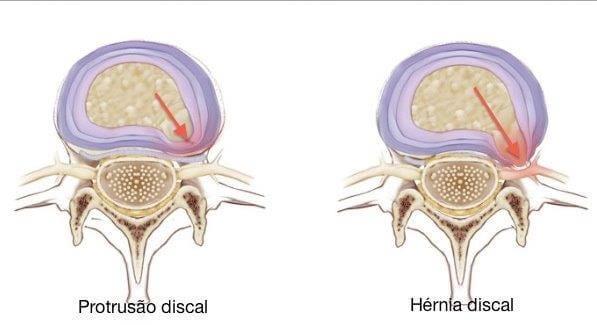 protusao discal