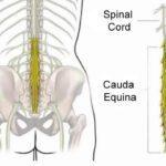 Síndrome da Cauda Equina: rara e negligenciada, doença pode deixar sequelas permanentes