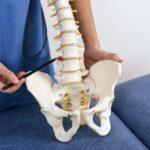 Médico especialista em hérnia de disco tira dúvidas sobre a doença