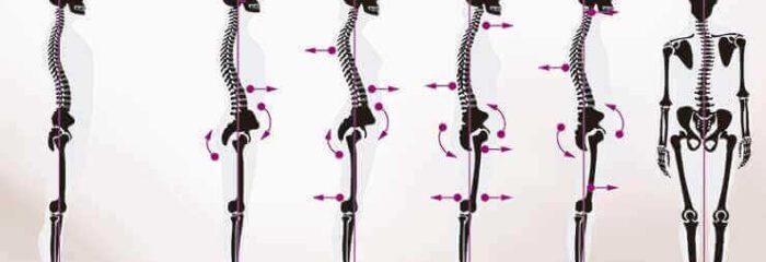 Hiperlordose: saiba o que é, como tratar e evitar o problema que afeta a saúde da coluna