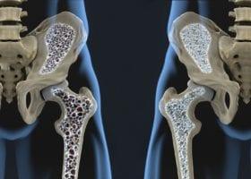 Descubra quais são as causas e os sintomas da osteoporose