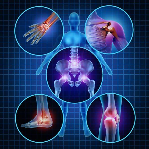 diferenças entre artrose e artrite