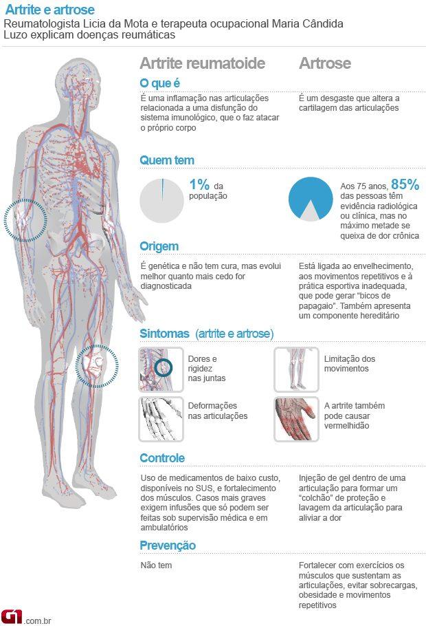 o que é artrite o que é artrose causas, sintomas, diferenças