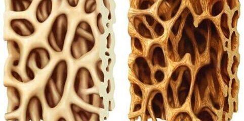 Você sabe o que é osteoporose e quais são os sintomas?